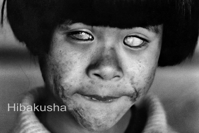 HIBAKUSHA - I saw the big ball of fire! Then, the world became dark for me! Forever!